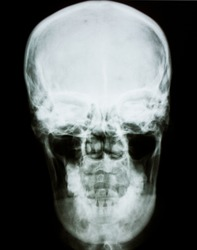 Human head  x-ray film