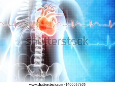 Human heart attack. Heart Disease. 3d illustration