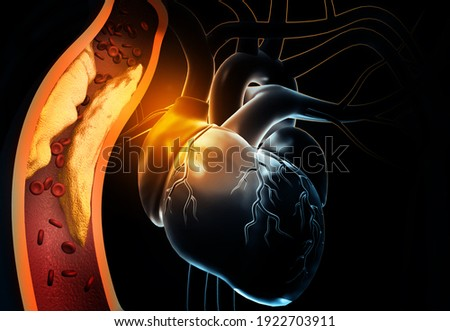 Human heart with clogged arteries. 3d illustration Сток-фото ©