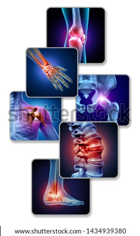 Human joint pain concept as skeleton and muscle anatomy of the body with a group of sore joints as a painful injury or arthritis illness symbol for medical symptoms with 3D illustration elements.