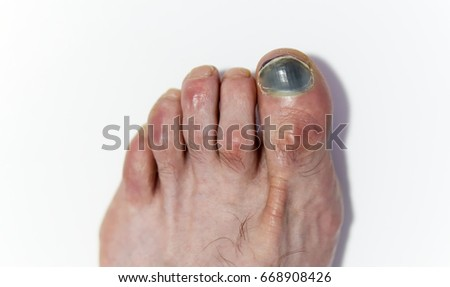 Human male left foot on white background, with hammer toes and bruised black toenail
