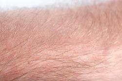 Human skin (arm of a man)