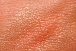 Human skin macro picture