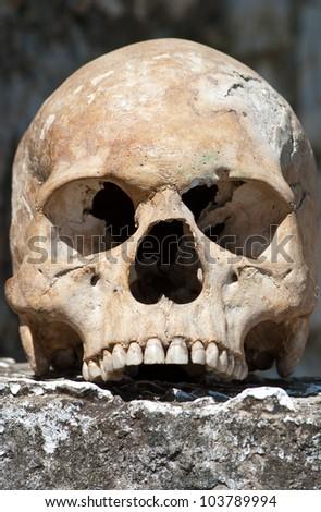 human skull missing lower jaw - stock photo