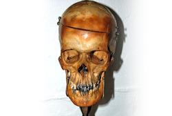 Human skull with silver teeth