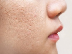 icepick scars acne on cheek on face in women cause of happen because of the overlaying skin collapses and leaves a hole, narrow and deep using for cream or beauty product