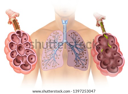 Illustration composed of a person in which we see the lungs and two alveolar sacs, one healthy and one affected by emphysema. Stock photo ©