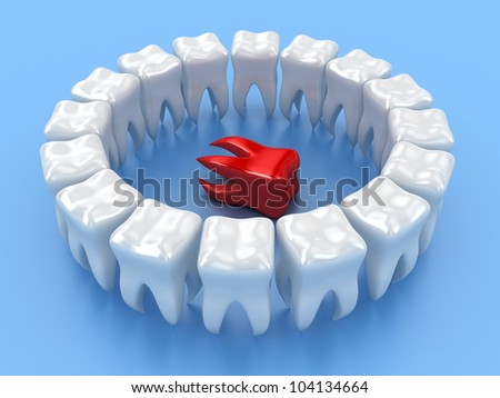 Illustration of a ring white teeth with one in centre