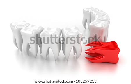 Illustration of a row white teeth with one red nearby
