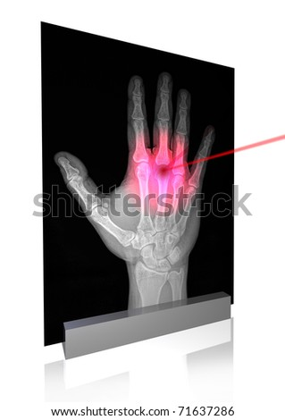 illustration of hand x-ray with pain point