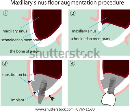 illustration of the process of Maxillary sinus floor augmentation procedure