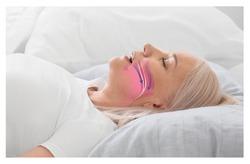 Illustration showing airway during obstructive sleep apnea