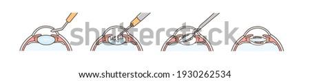 Illustrations for explaining cataract surgery. Foto stock ©