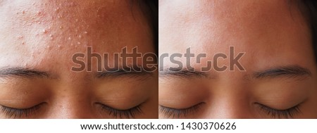 Image before and after acne treatment on the face of young Asian woman. Problem skin and beauty concept.
