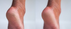 Image before and after cracked heel skin of foot treatment concept.