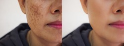 Image before and after dark spot melasma pigmentation skin facial treatment on face asian woman. Problem skincare and health concept.