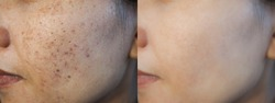 Image before and after dark spot scar acne and melasma pigmentation skin facial treatment on face asian woman. Problem skincare and health concept.