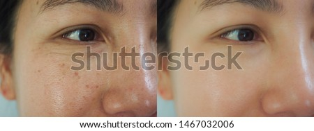 Image before and after dark spot wrinkle melasma pigmentation skin facial treatment on face asian woman. Problem skincare and beauty concept.