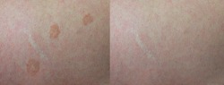 Image before and after skin treatment skin disease caused by fungal Malassezia furfur, Tinea versicolor/Pityriasis versicolor on the back skin of caucasian man middle age.