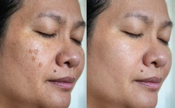 Image before and after spot melasma pigmentation facial treatment on asian woman face. skincare and health problem concept.