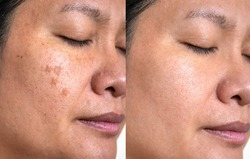 Image before and after spot melasma pigmentation facial treatment on middle age asian woman face. skincare and health problem concept.
