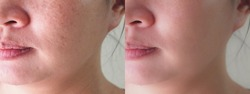 Image before and after spot melasma pigmentation skin facial treatment on face asian woman. Problem skincare and health concept.