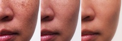 Image before and after spot melasma pigmentation treatment on skin face asian woman compare in 3 weeks. Problem Skincare and health concept.