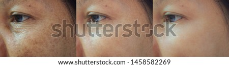 Image before and after spot melasma pigmentation treatment on skin face asian woman compare in 3 periods. Skincare and beauty concept