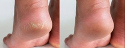 Image before and after treatment of dry heels cracks skin dehydrated skin on heels of female feet.