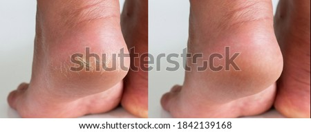 Image before and after treatment of dry heels cracks skin dehydrated skin on heels of female feet. ストックフォト ©