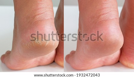 Image before and after treatment of dry heels cracks skin dehydrated skin on heels of female feet. Zdjęcia stock ©