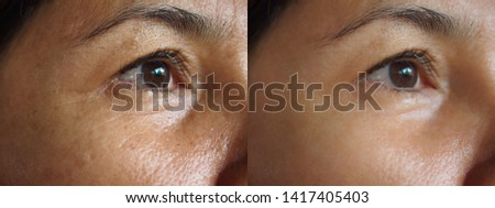 Image before and after treatment rejuvenation surgery on face asian woman concept .Closeup wrinkles dark spots pigmentation on senior female.