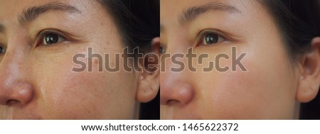 Image before and after treatment rejuvenation surgery on face asian woman concept. Closeup wrinkles dark spots pigmentation skin on face asian woman.