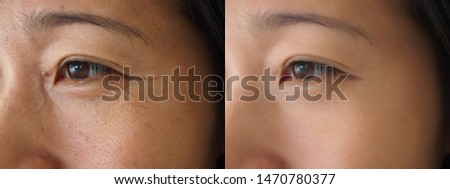 Image before and after treatment rejuvenation surgery on face asian woman concept. Closeup wrinkles dark spots pigmentation on facial female.