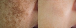 Image closeup before and after spot melasma pigmentation skin facial treatment on face asian woman. Problem skincare and health concept.