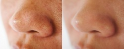 Image closeup before and after treatment small pimple acne blackheads on skin of nose and spot melasma pigmentation on facial Asian woman. Problem skincare and health concept.