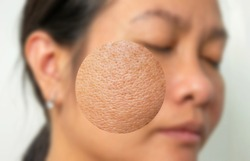 Image for skin cares business Zoom in Large pores skin texture  from middle age Asian woman skin  imperfect skin concept