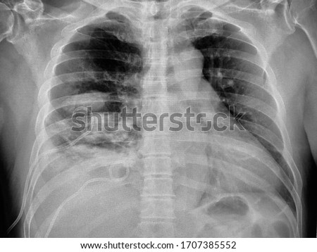 Image of chest tube drainage at right side. PCD(percutaneous catheter drainage) was used in patients to diagnose and/or treat pleural effusions,hemothorax,symptomatic malignant effusions and empyemas. Photo stock ©