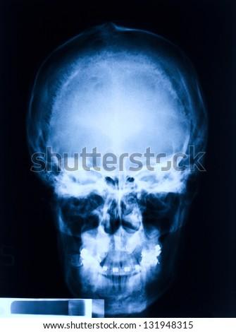 image of skull blue xray - stock photo