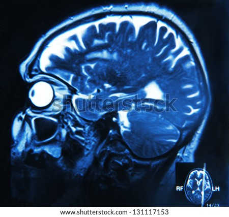 Imaging of the brain on x-ray