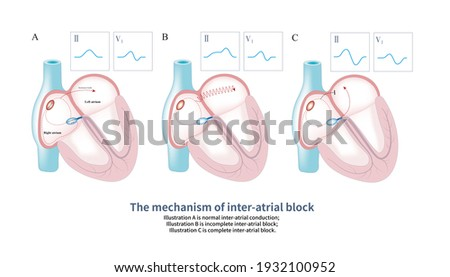 In Bachmann bundle lesions, the conduction of sinus impulse from right atrium to left atrium was disordered, and the shape of sinus P wave changed. Stock fotó ©