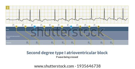 In second-degree type 1 atrioventricular block, if the PR interval is longer than the PP interval, the QRS wave will delay to the next P wave. Photo stock ©