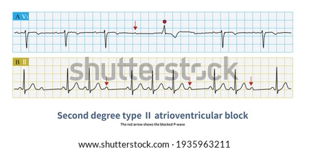 In second degree type Ⅱ atrioventricular block, PR interval was fixed with QRS wave shedding, and the block site was usually his bundle-Purkinje system. Photo stock ©