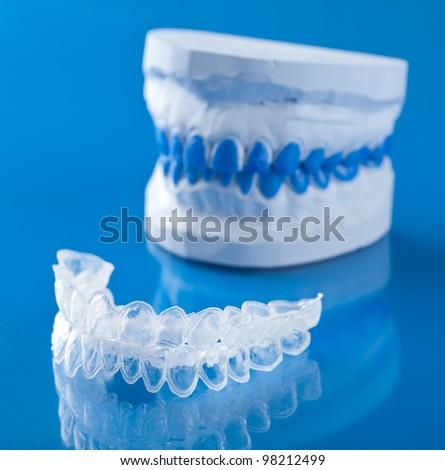 Dantų balinimo kapos