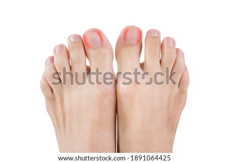 Ingrown toenails on a woman's foot, isolated on white background, pain in the big toe closeup Stock photo ©