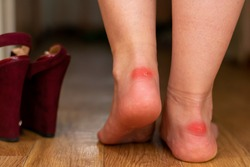 Injured damaged red skin on bare feet because of uncomfortable shoes.