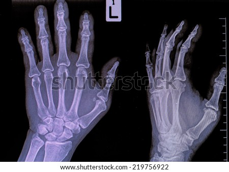 injury of hand and finger x-rays image