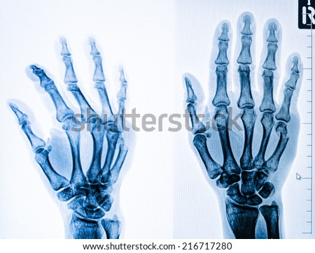 injury of hand and finger x-rays image on the computer monitor