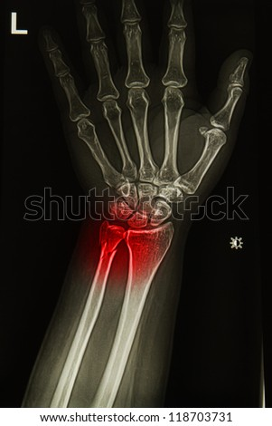 injury or painful of wrist joint  x-rays image
