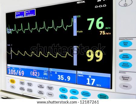 intensive care unit cardiac monitor